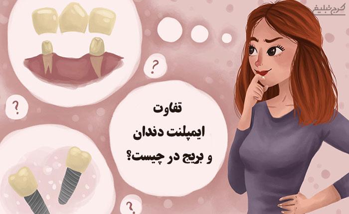 تفاوت ایمپلنت دندان و بریج در چیست و کدامیک بهتر است؟