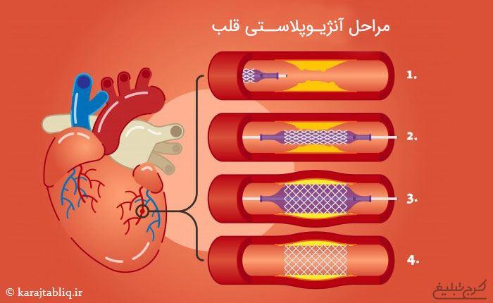 مراحل آنژیوپلاستی قلب در کرج