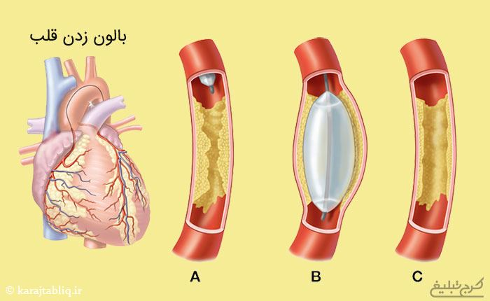 بالون زدن قلب در حین انجام آنژیوپلاستی قلب