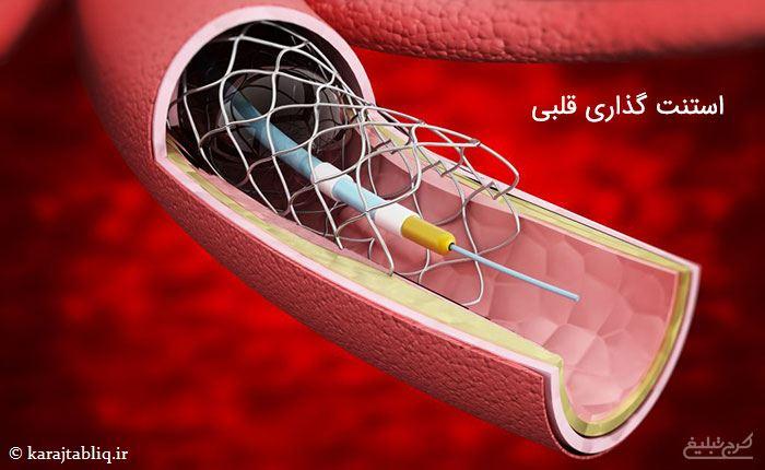 استنت گذاری قلبی در حین انجام آنژیوپلاستی قلب در کرج