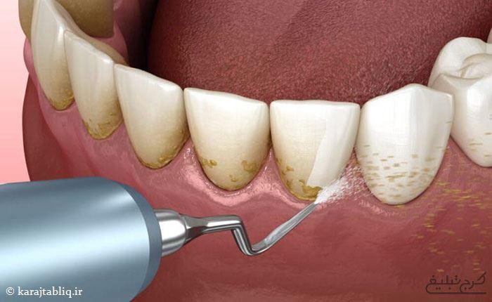 اسکیلینگ و جرم گیری عمیق دندان در کرج