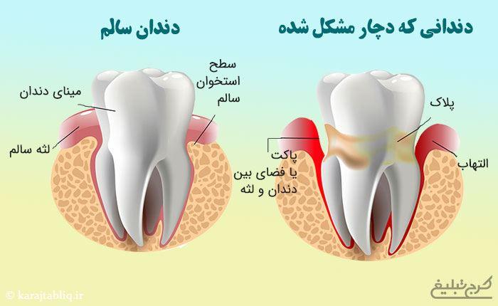 مقایسه دندان سالم و دندانی که مشکل پریودنتال دارد