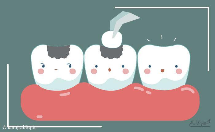 ترمیم دندان در کرج