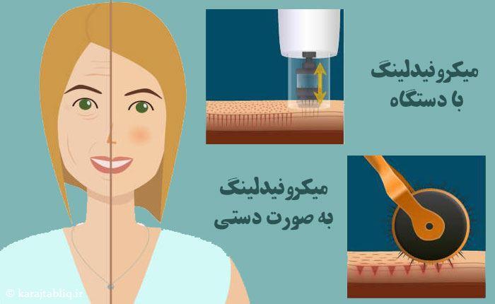 انواع روش های انجام میکرونیدلینگ در کرج با دستگاه و به صورت دستی
