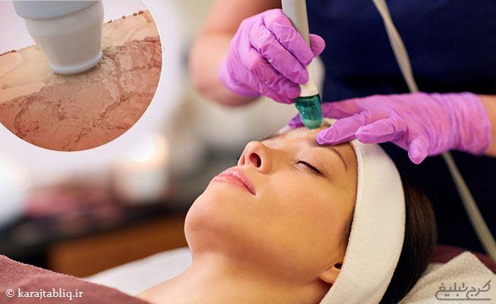 روش میکرودرم برای جوان سازی پوست