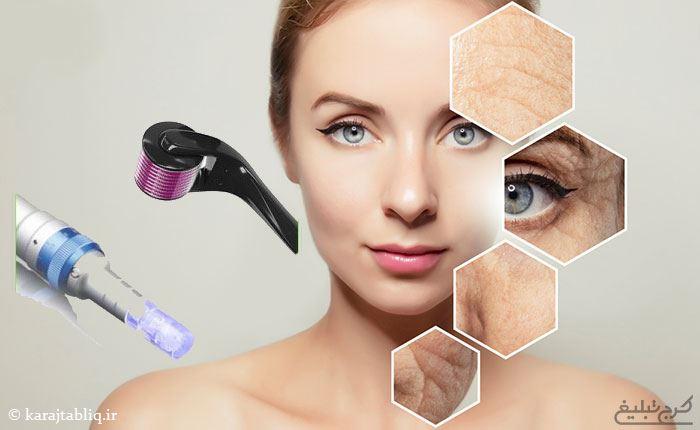 میکرونیدلینگ برای کلاژن سازی و جوان سازی پوست