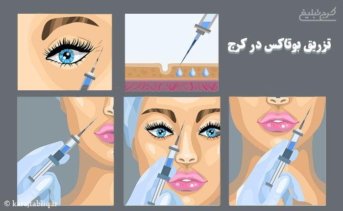 تزریق بوتاکس در کرج