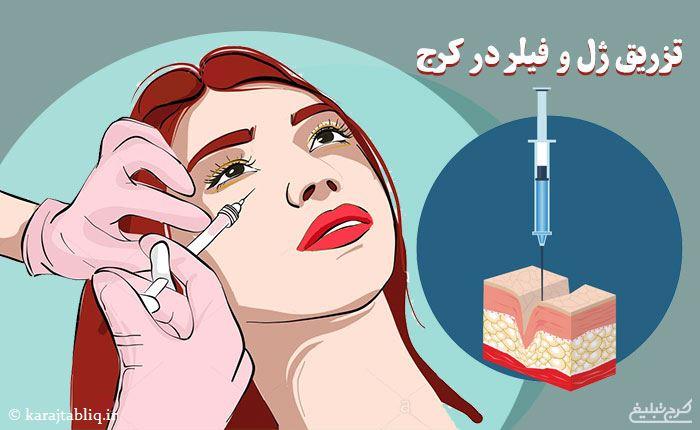 تزریق ژل در کرج و تزریق فیلر در کرج