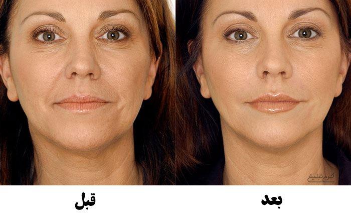 قبل و بعد از تزریق ژل برای درمان خط خنده در کرج