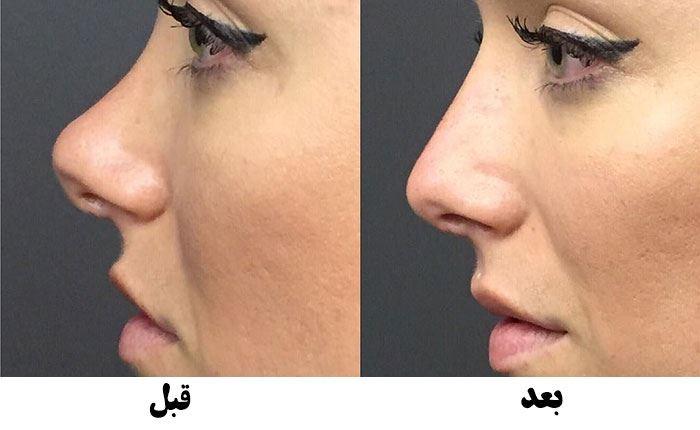 قبل و بعد از تزریق فیلر بینی در کرج