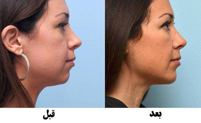 قبل و بعد از تزریق ژل چانه در کرج