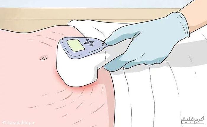 روش های درمان ترکهای پوستی یا استرچ مارک