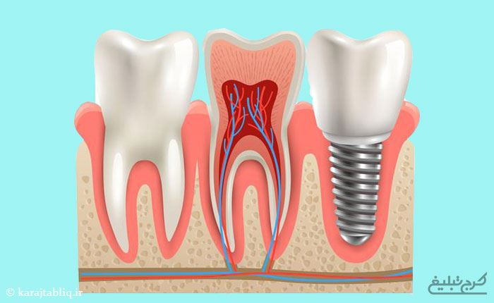 جراحی ایمپلنت دندان در کرج توسط متخصصین ایمپلنت کرج
