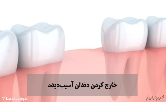 خارج کردن دندان آسیبدیده به عنوان مرحله اول کاشت ایمپلنت در کرج