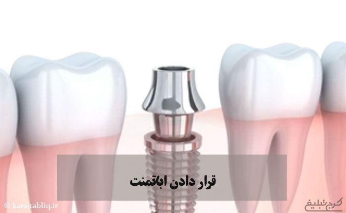قرار دادن اباتمنت به عنوان مرحله چهارم از ایمپلنت دندان در کرج