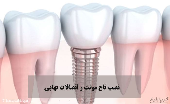 نصب تاج موقت و اتصالات نهایی به عنوان مرحله آخر کاشت ایمپلنت دندان در کرج