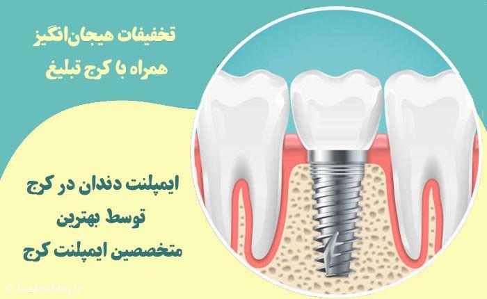 ایمپلنت دندان ارزان در کرج