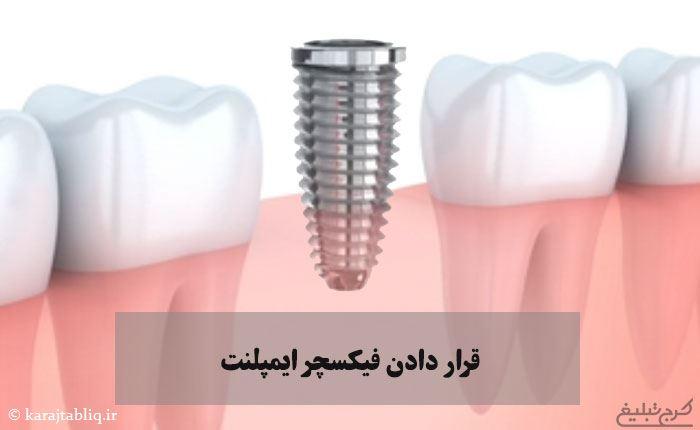 قرار دادن فیکسچر ایمپلنت به عنوان مرحله دوم کاشت ایمپلنت دندان در کرج