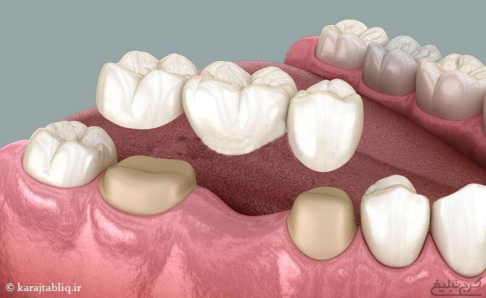 بریج دندان در کرج
