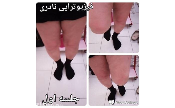 در جلسه اول فاصله دو پا از ران زیاد بوده و بیمار نمی تواند جفت پا بایستد و توان ایستادن روی پای راست بسیار کم است. همچنین هنگام ایستادن روی پای راست بدلیل تحمل وزن پا انحراف پیدا می کند.
